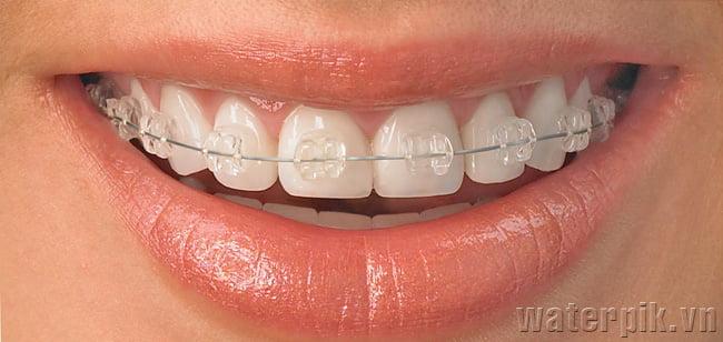 Niềng răng thẩm mỹ bằng mắc cài trong suốt